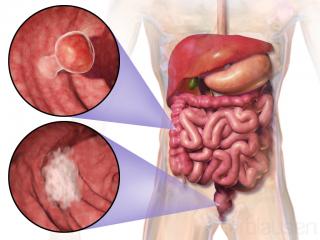 سرطان روده بزرگ و علایم آن