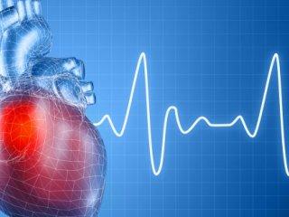 تپش قلب، علت ها و راه حل ها. نویسنده: دکتر علی غلامرضانژاد