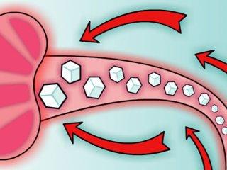 درگیری کلیه ها در دیابت