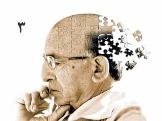 بیماری آلزایمر (قسمت سوم)