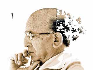 بیماری آلزایمر (قسمت اول)