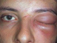 سلولیت چشمی چیست؟