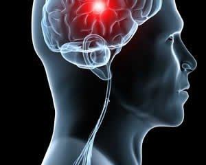 هفت علامت مهم سکته مغزی. نویسنده: آیلار آرزوگران