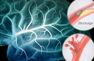 عوامل خطر و عوارض سکته مغزی