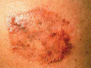 سرطان سلولهای پایهای