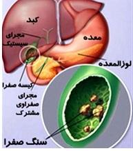 کیسه صفرا چیست و در بدن ما چه می کند؟ قسمت اول